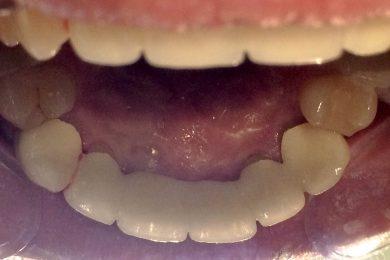 Végleges pótlás a szájban